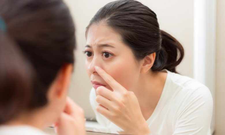 Are you suffering from acne, you should take Retin-A Micros